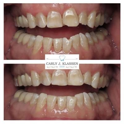 chipped-teeth-repair