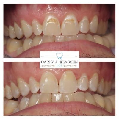 dental-fillings-willow-park