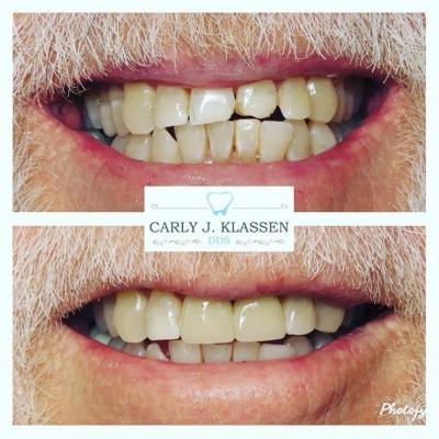 dental-crowns-willow-park-tx