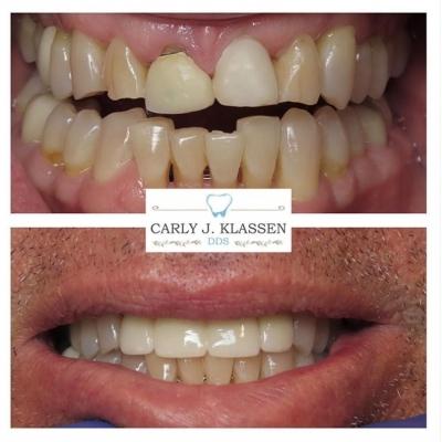 dental-restoration-azle-tx