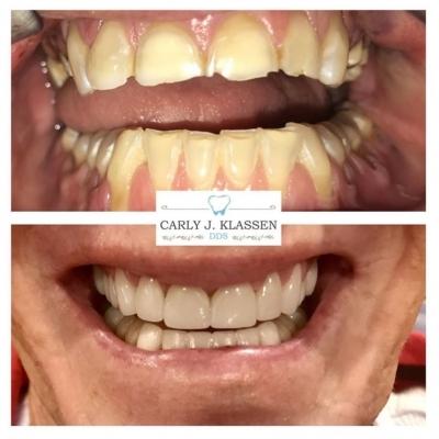 total-dental-restoration-weatherford