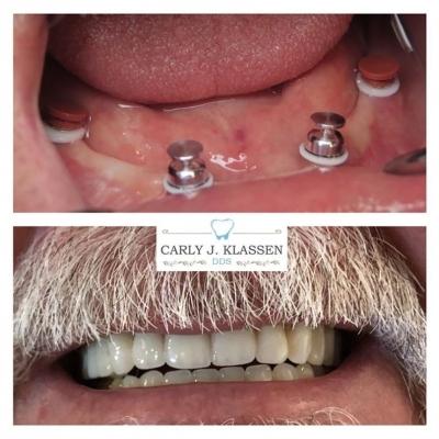 dental-implants-willow-park