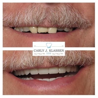 dental-restoration-willow-park