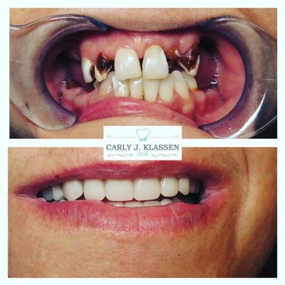mouth-restoration-weatherford
