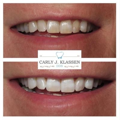 teeth-whitening-willow-park-texas