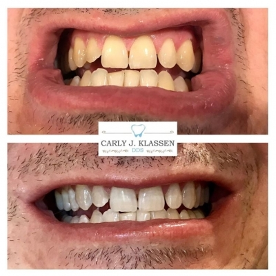 tooth-whitening-system