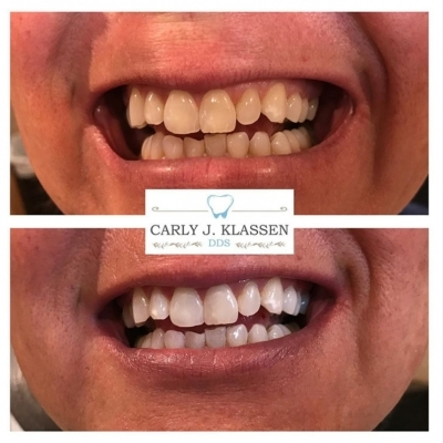 tooth-whitening-weatherford